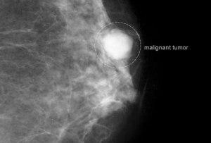 Mammografi malignant_tumor